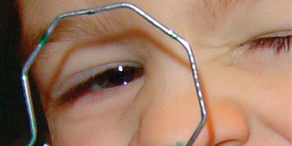 ambliopia e neurorreabilitação visual
