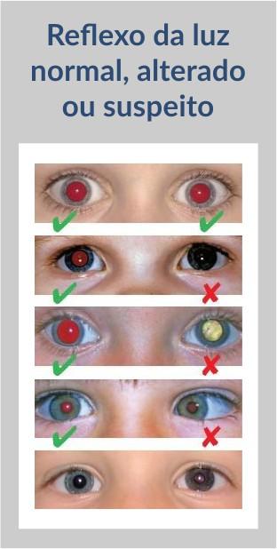 resultados possíveis do teste do olhinho
