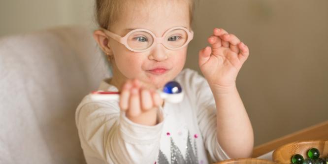 problemas oculares em crianças com síndrome de Down